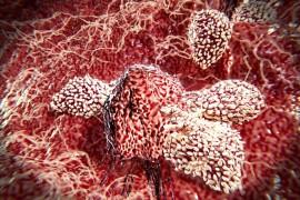 کشف راهی برای درمان همه انواع سرطان