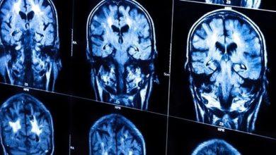 تصویر دانشمندان ایرانی راهی برای تسریع ارتباط بین بخش های مختلف مغز یافتند