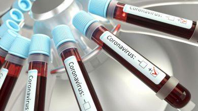 Photo of تمهیدات ویژه آزمایشگاهی برای کرونا و آنفلوآنزا در پاییز