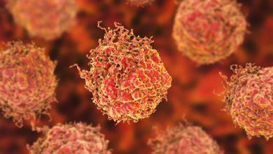 تصویر نابودی سلولهای سرطانی با روشی جدید
