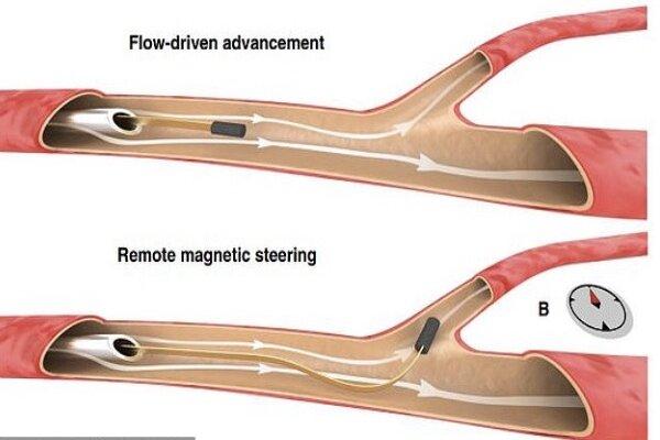 ابداع سیم نازکی که در رگ های مغزی حرکت می کند